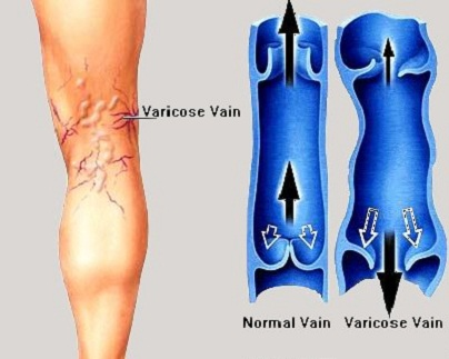 solution for varicouse veins in vaishali delhi india